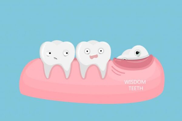 What Are The Common Signs To Remove The Wisdom Teeth?