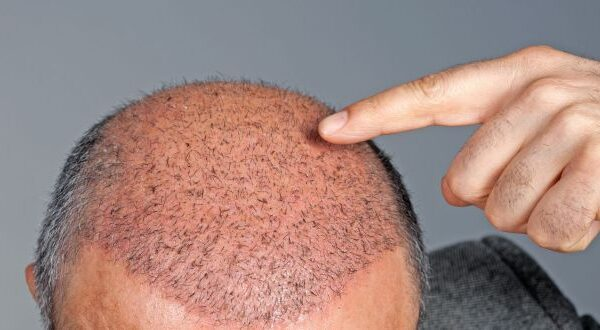 Hair Transplant Techniques And Their Benefits